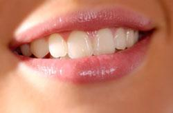 Teeth Whitening Clintonville OH