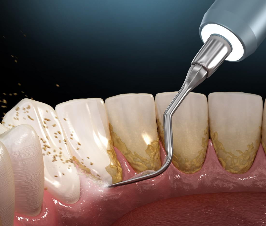 Dental Plaque: What You Need to Know